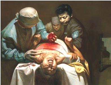 17-літнє переслідування Фалуньгун і насильницьке вилучення органів